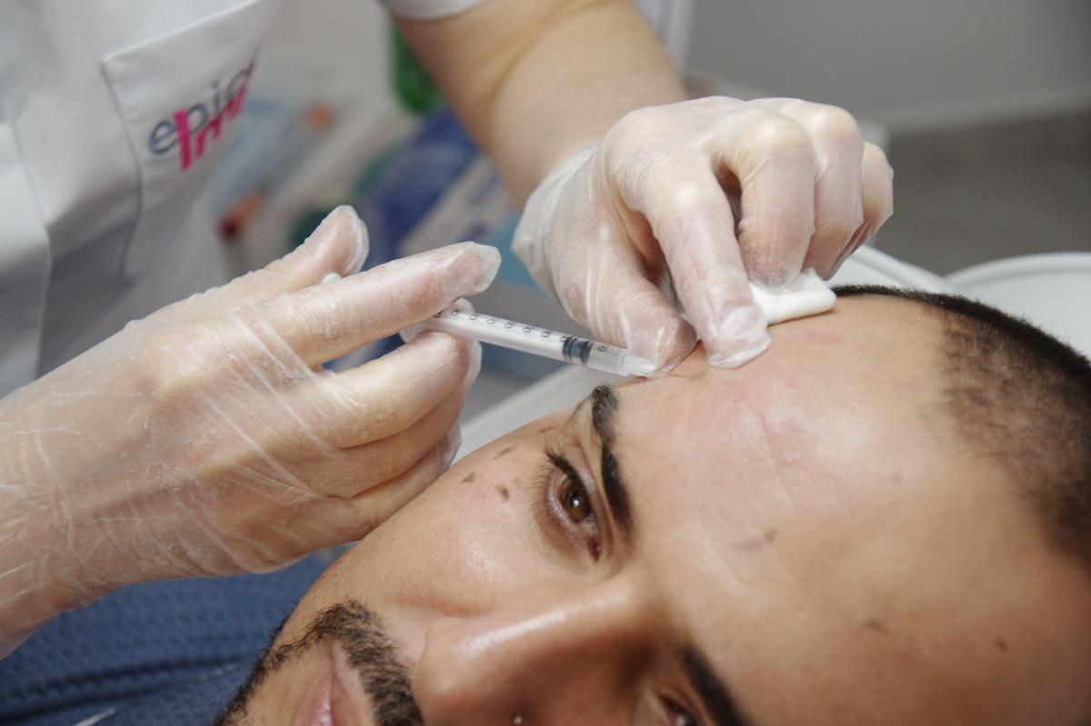 epilare laser in chisinau