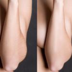 epilare-cu-ultrasunet