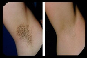 laser-black-hair-removal-before-after-underarm-hair-removal-01-2