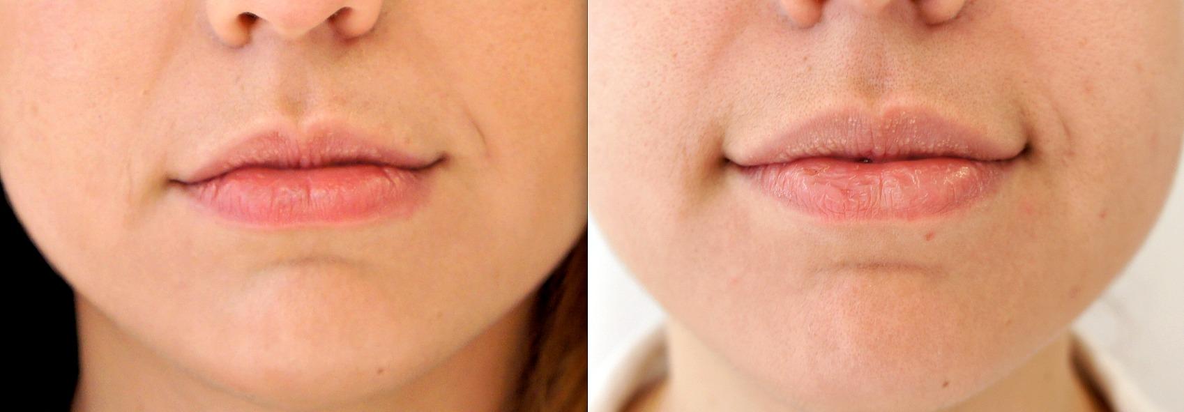 greutatea buzelor pierde