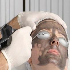 Peeling negru cu laser